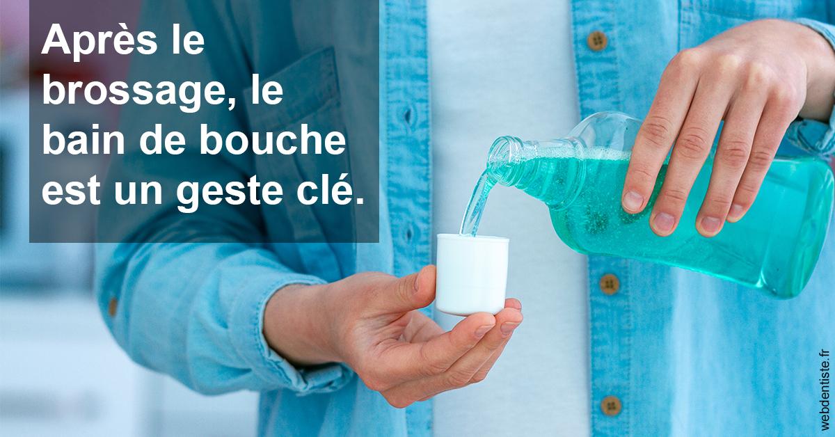 https://dr-monlouis-deva-michele-sandra.chirurgiens-dentistes.fr/Bains de bouche 1